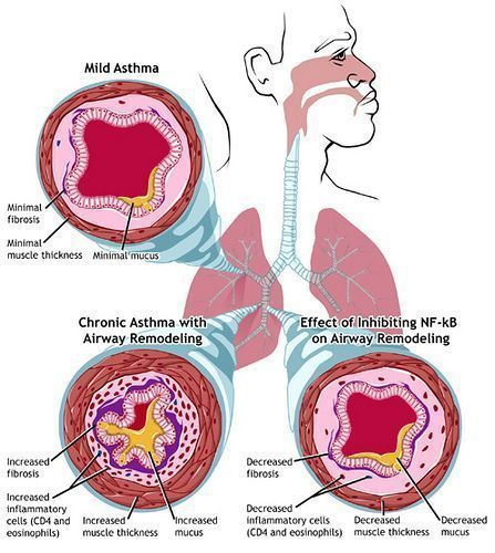An Essay Discussing The Increased Risk Of Asthma In Obese People  Asthma Mild And Chronic