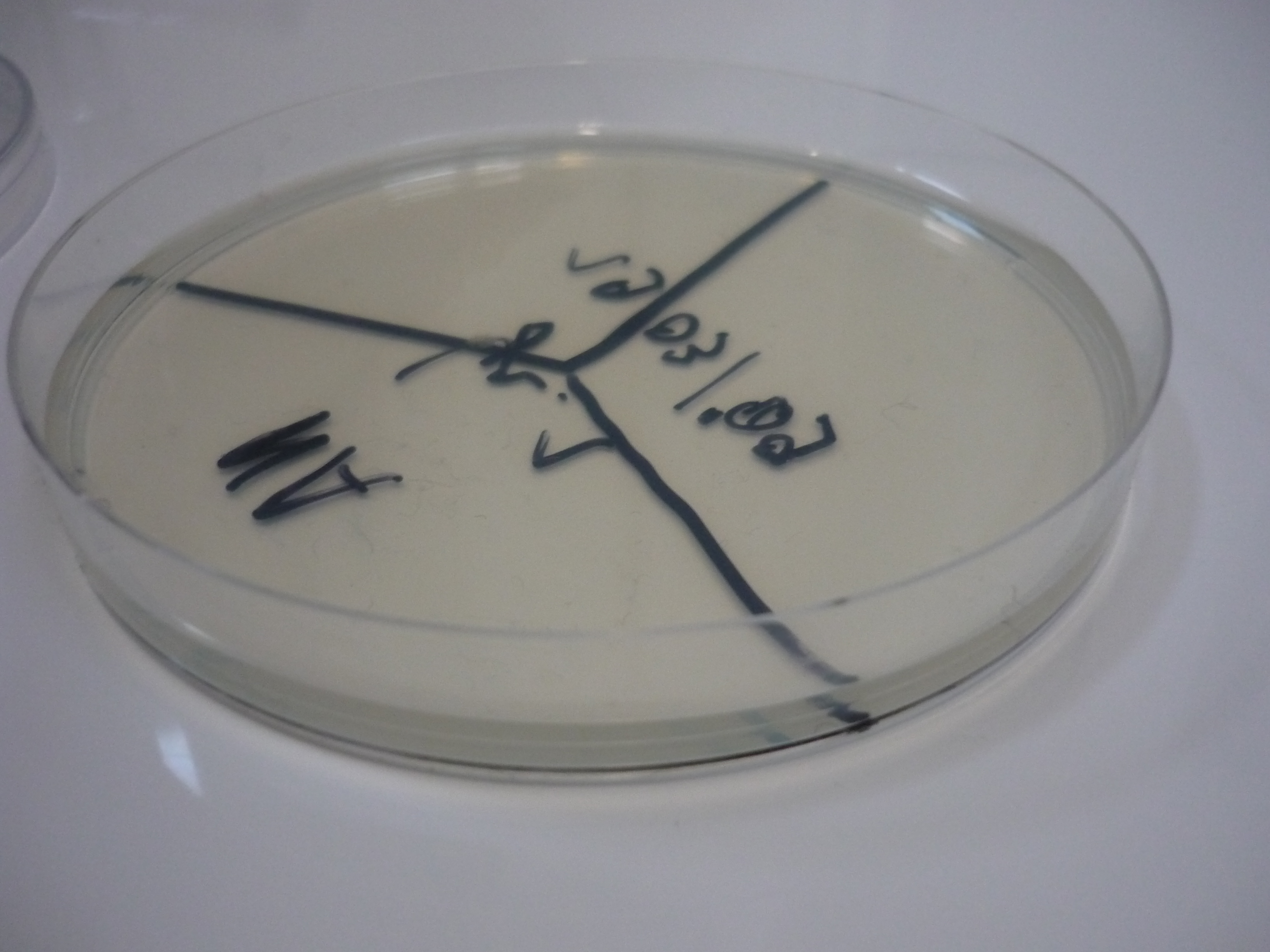 microbiology lab report on staphylococcus aureus and e coli Microbiology overview  in clusters coagulase (+): staphylococcus aureus  the ucla microbiology laboratory utilizes standard reference methods for determining.