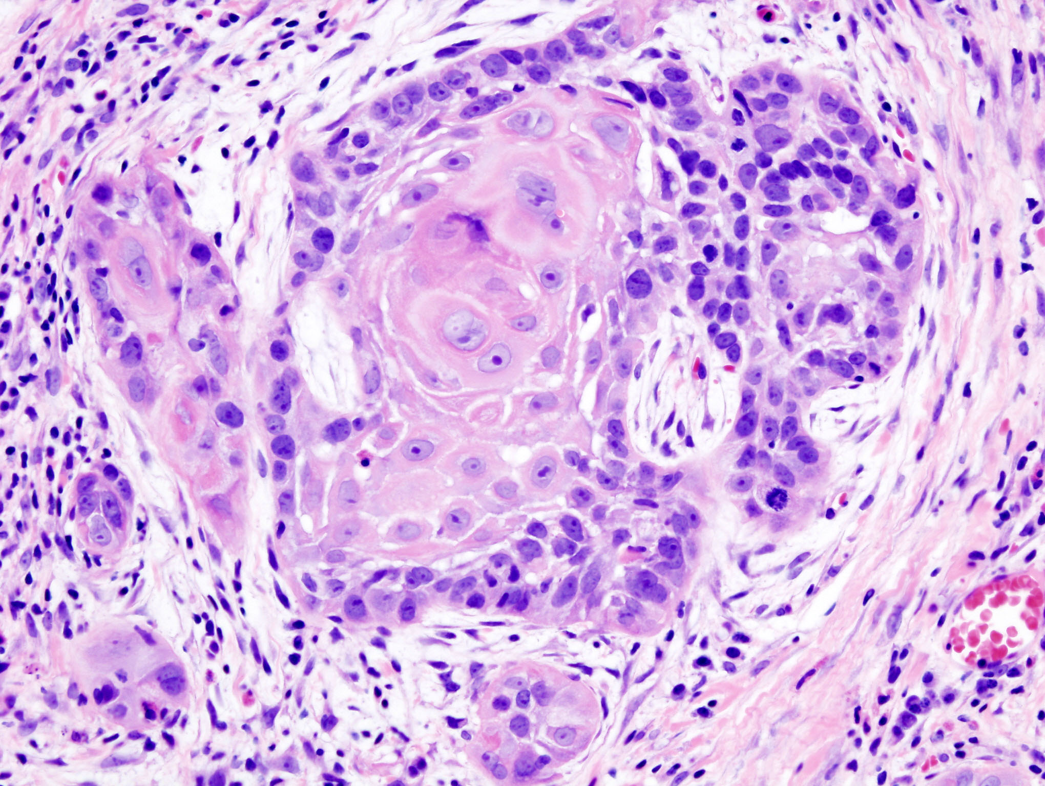 skin cancer writework biopsy of a highly differentiated squamous cell carcinoma of the mouth haematoxylin eosin stain