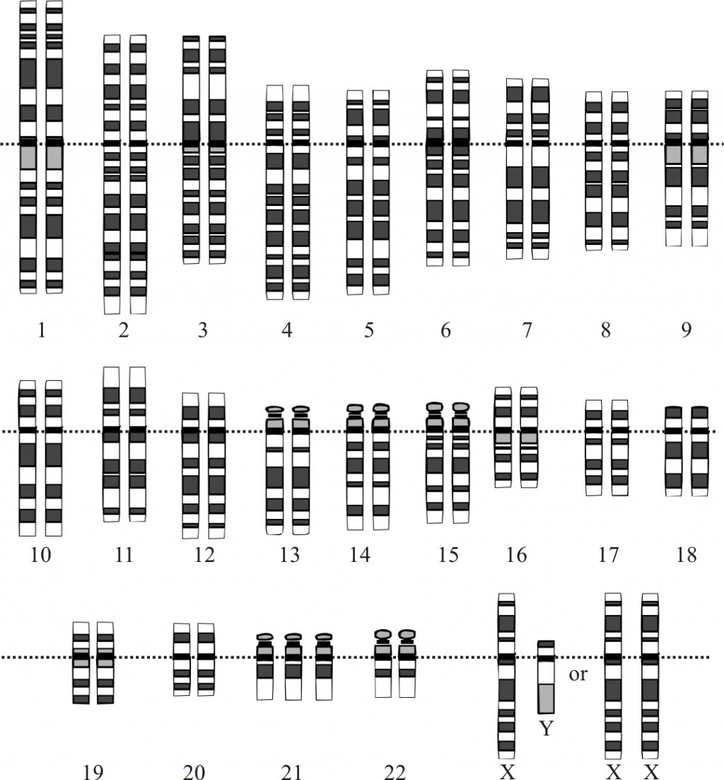 summary of down syndrome symtoms and treatments  down syndrome karyotype from en same file