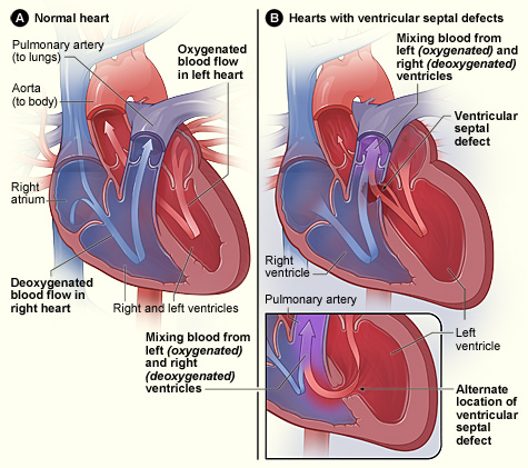The heart its diseases and functions writework english figure a shows the structure and blood flow in the interior of a normal ccuart Images