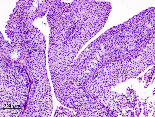 angiogenesis essay Thalidomide is one of  we will write a custom essay  thalidomide seemed to block the normal development of fetal limbs by preventing angiogenesis,.