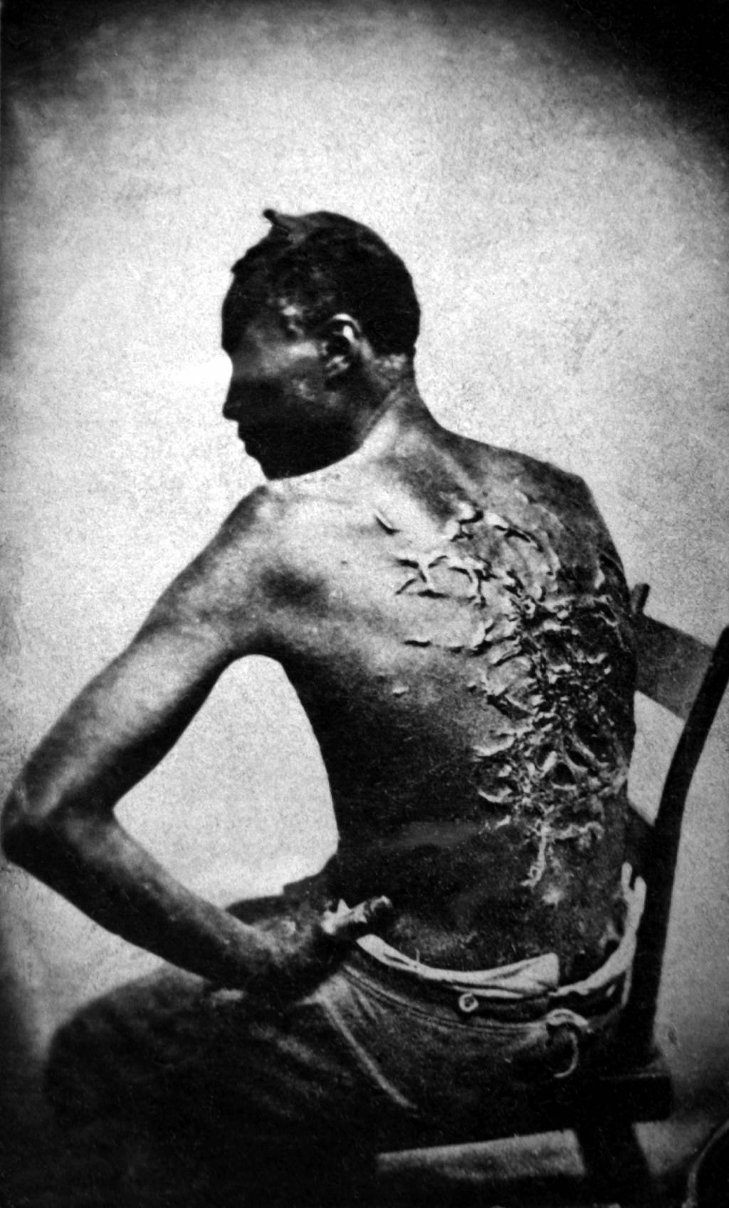 compare and contrast essay on the north and south writework scars of a whipped slave 2 1863 baton rouge louisiana