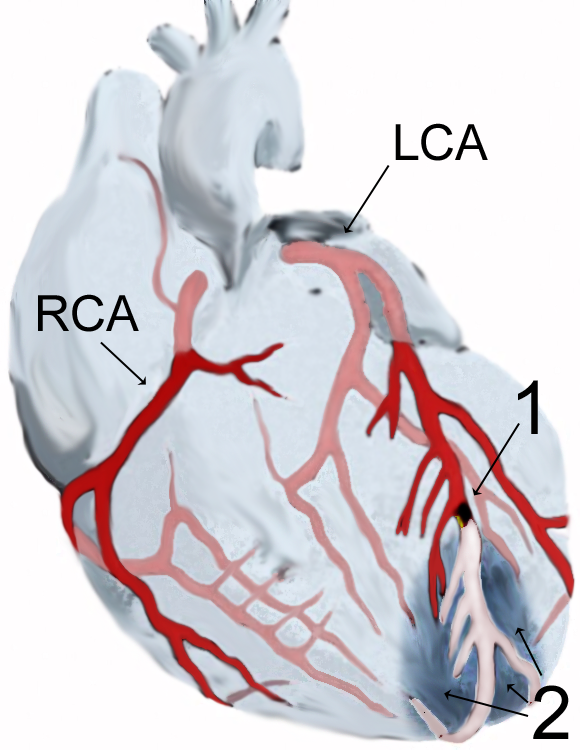 essay about myocardial infarction Myocardial infarction or acute myocardial infarction is the medical term for an event commonly known as a heart attack.