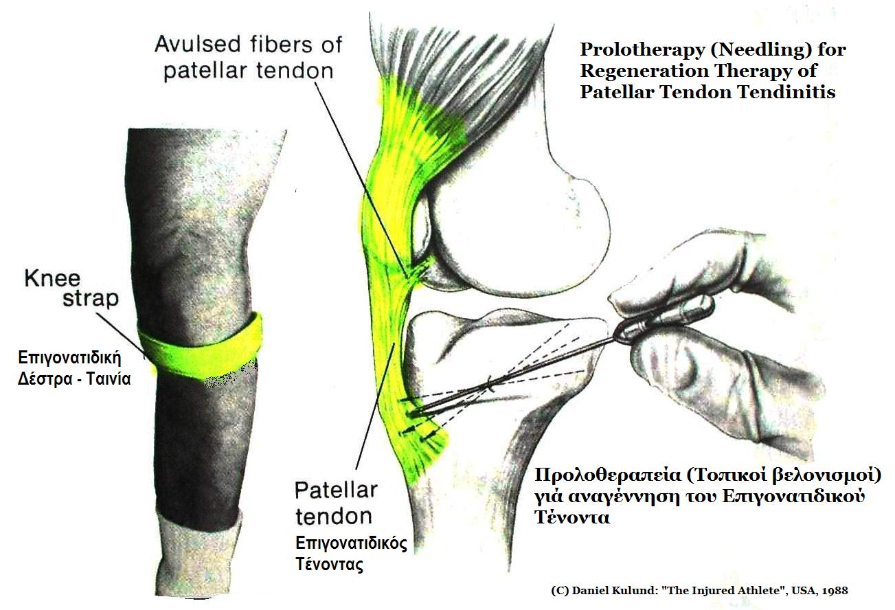posterior shoulder enthesis Lateral versus posterior approach to shoulder injection in patients with subacromial impingement syndrome : thesis embargoed until 16 may 2020.