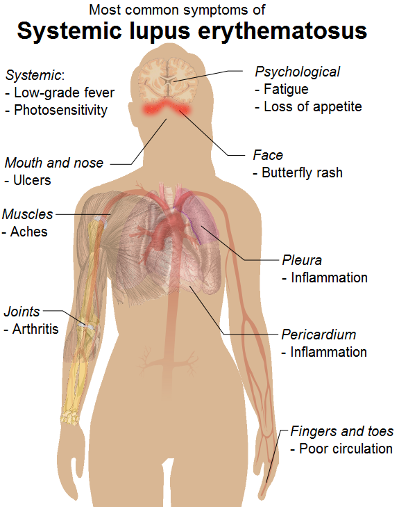 lupis disease essay Although the cause is still uncertain, it is known that lupus is an autoimmune disease which means that the immune system, which normally protects the body from bacteria, viruses and other foreign substances, mistakenly directs an attack against the body's own healthy tissues.